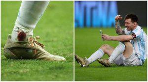 Messi Injury