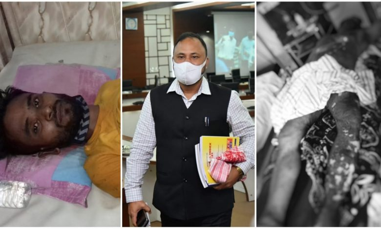People died in Jagiroad due to short circuit, two people injured in Narengi